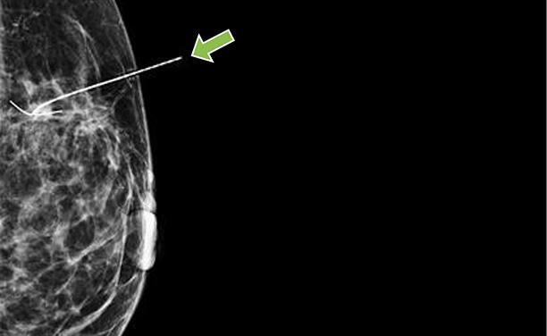 IRM du sein montrant le fil de fer