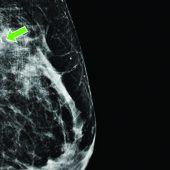 IRM du sein montant le grain