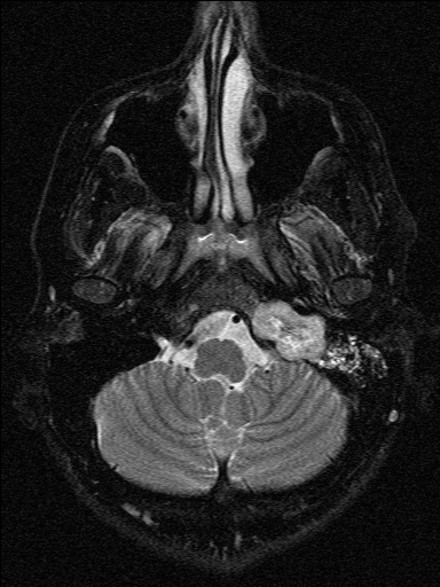 Natasha Lewis MRI image 2