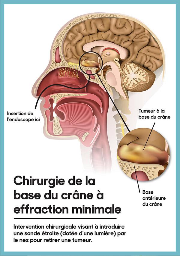 Intervention chirurgicale visant à introduire une sonde étroite (dotée d'une lumière) par le nez pour retier une tumeur.